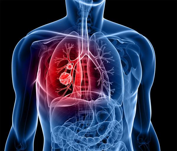 Световен ден за борба с рака - Защо се разболяваме