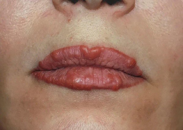 Естетичните процедури при некомпетентен специалист водят до сериозни опасности за живота и здравето